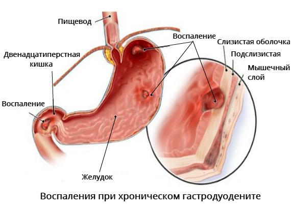 Хронический гастродуоденит ремиссия — Симптомы и Лечение