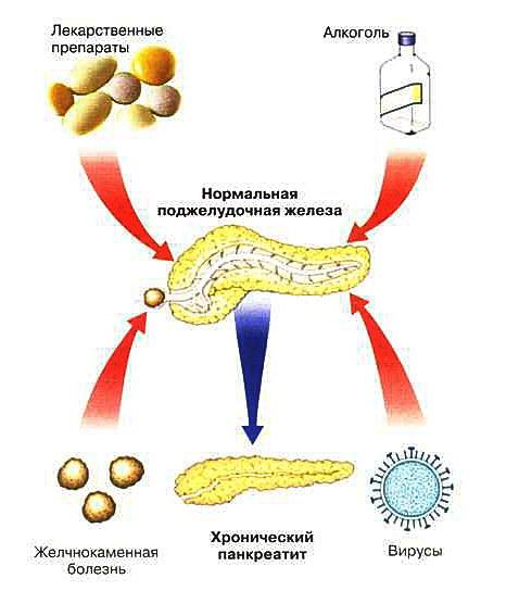 Неотложная помощь при остром панкреатите